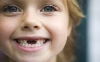 Меняются ли клыки у детей