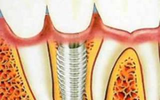 Протезирование и имплантация в чем разница