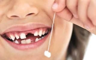 Выпал первый молочный зуб