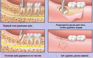 Удаление ретинированного зуба что это