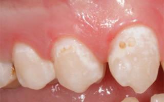 Лечение кариеса в стадии белого пятна
