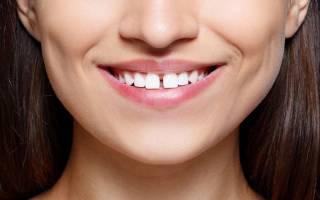 Как убрать щель между зубами