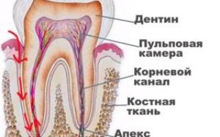 Пульпитный зуб что это такое