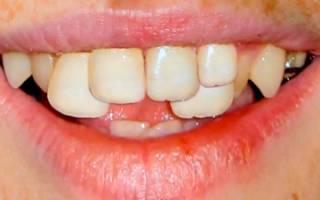 После брекетов зубы выдвинулись вперед
