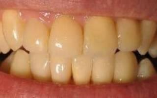 Почему желтеют зубы у ребенка