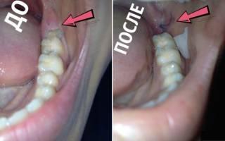 Воспаление десны после удаления зуба мудрости