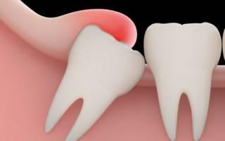 Головная боль после удаления зуба мудрости
