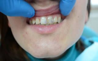 Почему ломаются зубы у взрослых