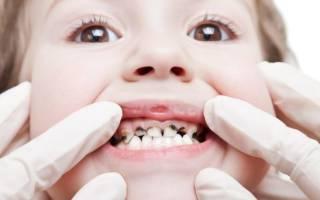 Зачем серебрят зубы детям