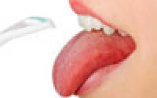 Белый налет на языке и температура