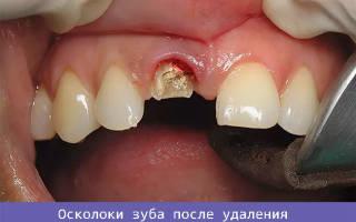 Вырвали зуб остался осколок