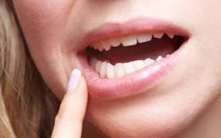 Покраснел зуб что это