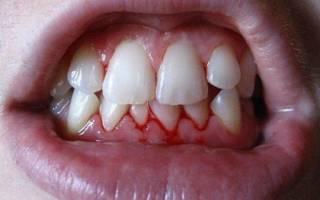 Вощеная или невощеная зубная нить