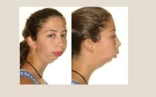 Отсутствие нижней челюсти