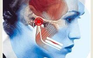 Воспаление челюсти симптомы и лечение