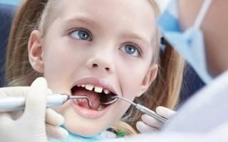 Флюороз зубов у детей лечение