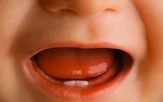 Заболевание десен у детей