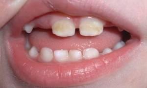 Как очистить налет на зубах у ребенка