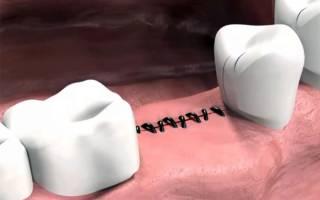 Когда снимают швы после имплантации зубов