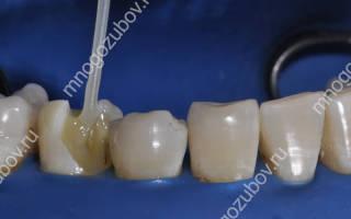 Стекловолокно в стоматологии