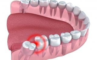 Удаление горизонтального зуба мудрости на нижней челюсти