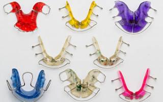 Детские ортодонтические пластинки