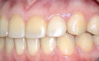 Как остановить разрушение зубов