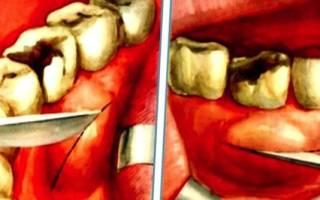 Периостит нижней челюсти лечение