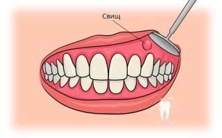 Свищ в стоматологии