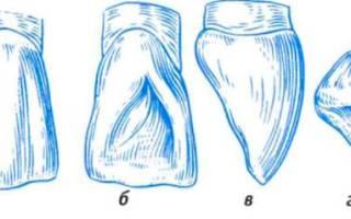 Анатомия клык верхней челюсти