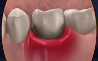 Абсцесс после удаления зуба мудрости