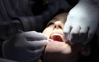 Кариес внутри зуба причины