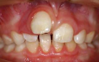 Растет зуб сбоку десны
