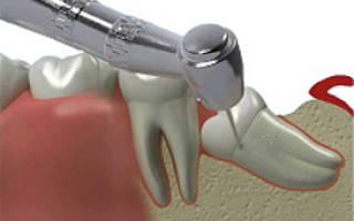 Когда нужно удалять зуб
