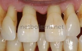 Парадонтит спасти зубы лекарства помогают