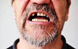 Рот без зубов
