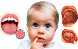 Заболевания ротовой полости у детей