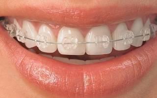 Как выглядят брекеты на зубах