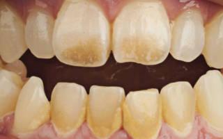 Как снять зубной налет в домашних условиях