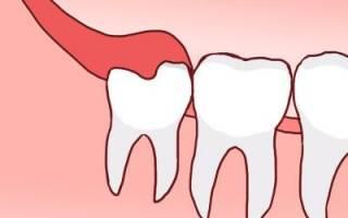 Как уменьшить боль при прорезывании зуба мудрости