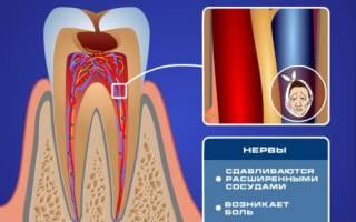 Как понизить чувствительность зубов
