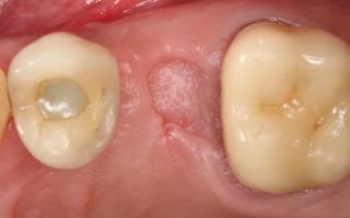 Как ухаживать за раной после удаления зуба