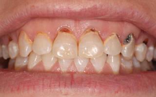 Зубная паста от пришеечного кариеса