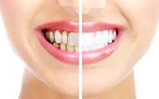 Почему появляется налет на зубах