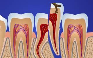Удалили зуб не полностью что делать