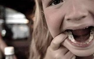Нужно ли пломбировать молочные зубы