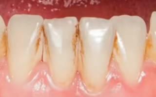Нужно ли делать чистку зубов у стоматолога