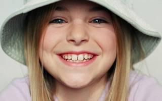 Когда выпадают коренные зубы у детей