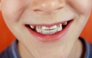 Зубные пластины