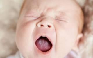 Белый налет на языке ребенка